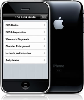 The ECG Guide for iPhone