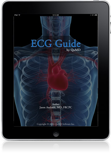 The ECG Guide for iPad
